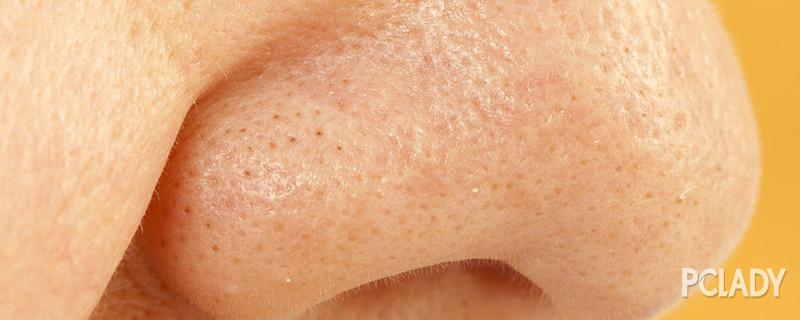 甲硝唑凝胶能去黑头吗 轻信护肤谎言就离烂脸不远啦