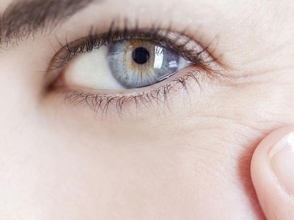 19岁眼部有皱纹怎么办